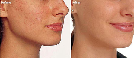 Mesoestetic-Before-After1