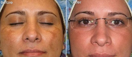 Mesoestetic-Before-After2