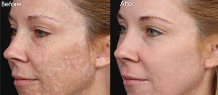 Mesoestetic-Before-After3