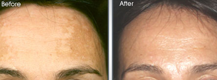 Eviron-Before-after